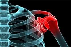 Травматизм в бодибилдинге и его профилактика